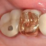 dental-crowns-before-brian-novak
