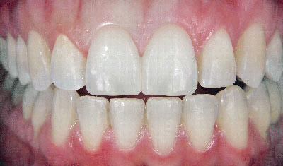 dental_veneers_after
