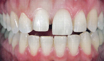 dental_veneers_before