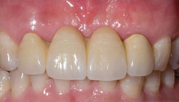 dentalbridges_after