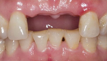 dentalbridges_before